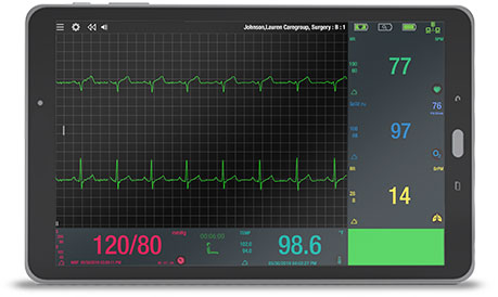 The Bedside Monitor (BSM) Software