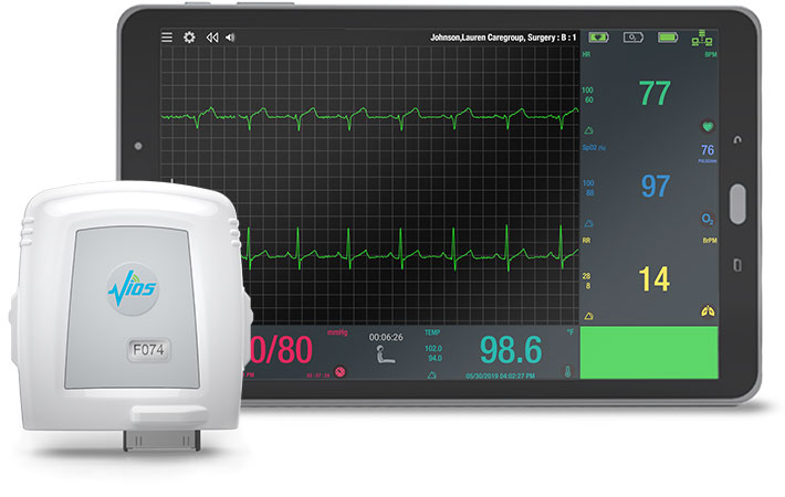 The Vios Chest Sensor and Bedside Monitor (BSM) Software